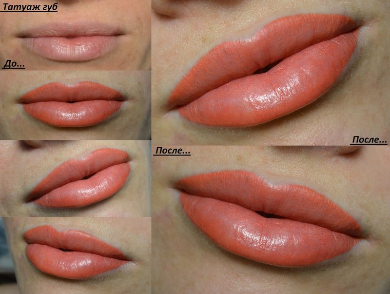 Foto's voor en na de procedure