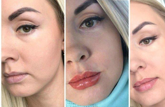 Foto's voor en na lip tattoo