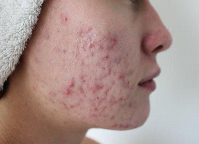 Problème de peau