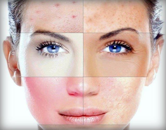 Masque pour différents types de peau