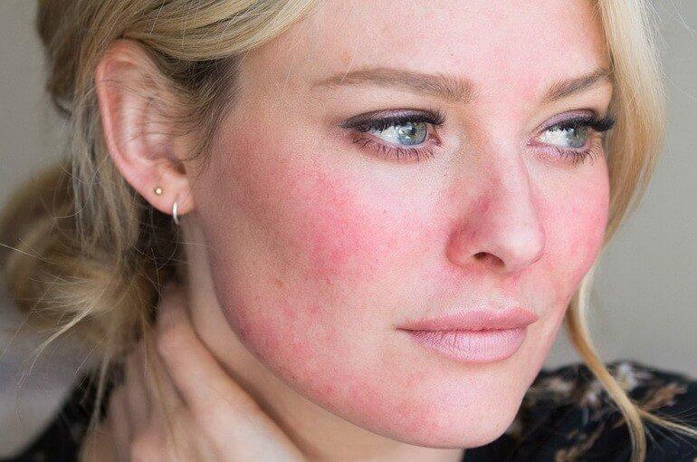 Oorzaken van roodheid van het gezicht