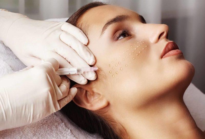 Papels op het gezicht na biorevitalisatie