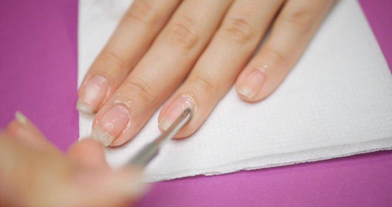 Verwijdering van de nagelriemen