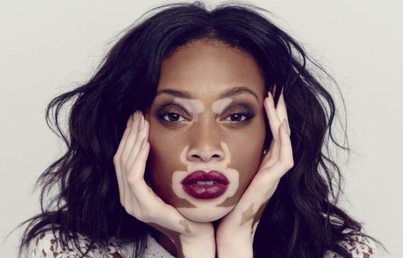 Meisje met vitiligo op haar gezicht.