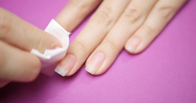 Ontvet de nagel