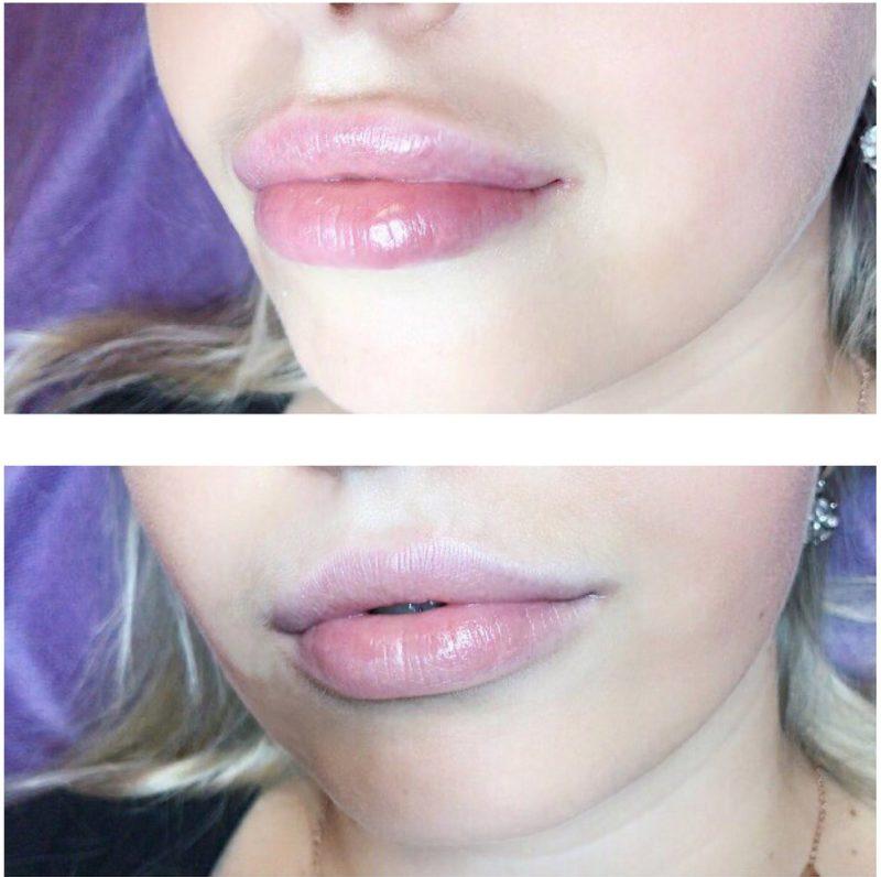 Zwelling van de lippen na vergroting van hyaluronzuur
