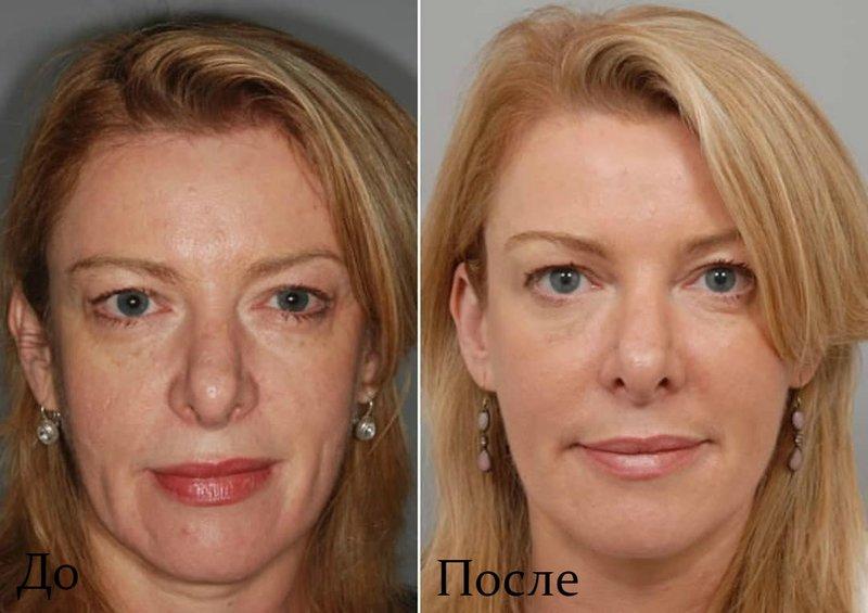 Het resultaat voor en na de hefprocedure van de ultraformer