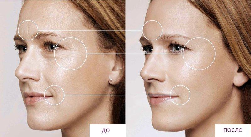 Resultaat voor en na biorevitalisatie van het gezicht