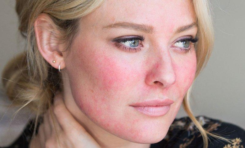 Dermatologische ziekte op het gezicht