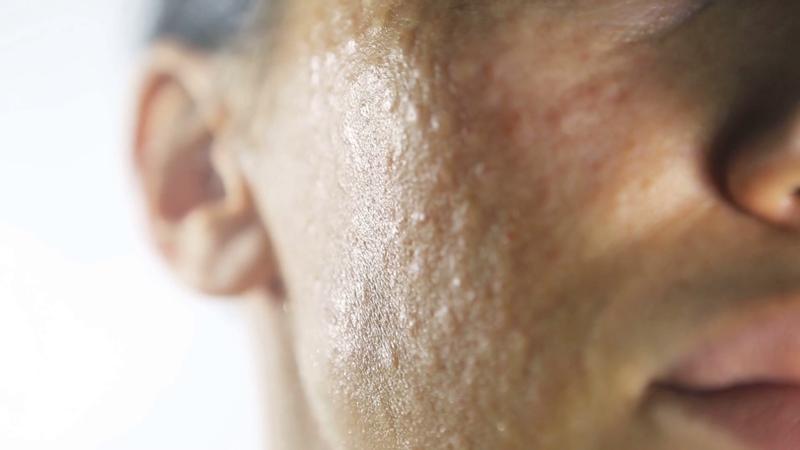 Papels met een diameter van 1 mm op het gezicht