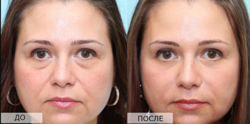 Echografie Face Lift