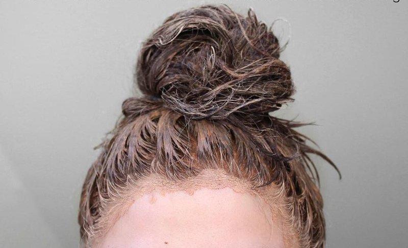 Kleimasker op het haar