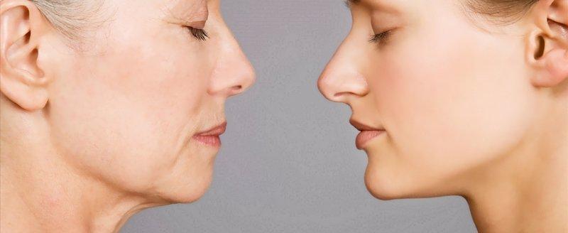 Oorzaken van huidveroudering