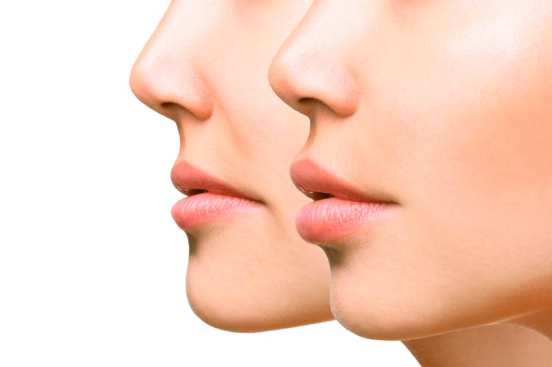 Lippen voor en na het aanbrengen van vulstoffen