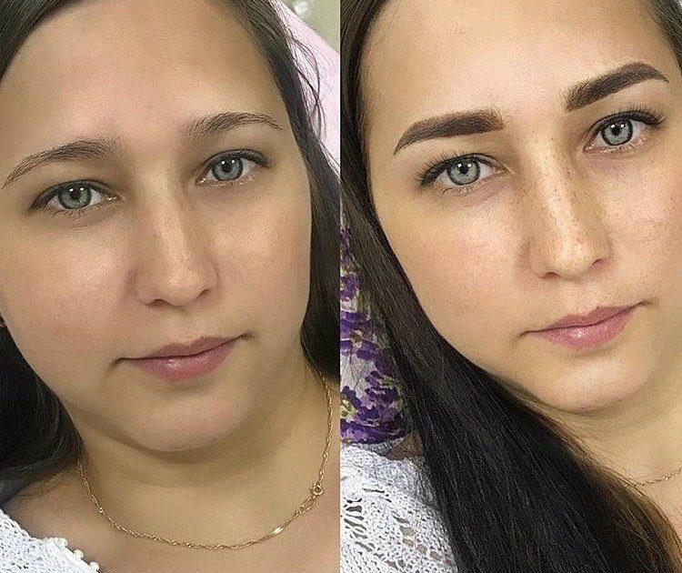 Plaukų tatuiruotės rezultatas: prieš ir po nuotraukų