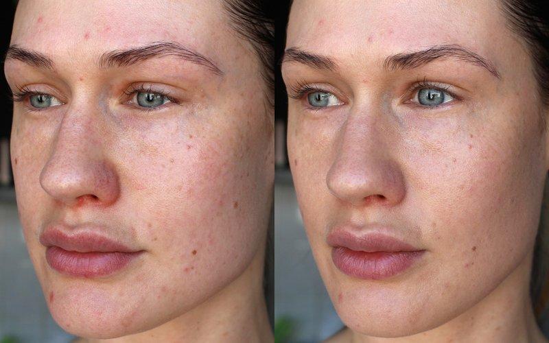 Het effect van peeling prx-t33: foto voor en na de eerste procedure
