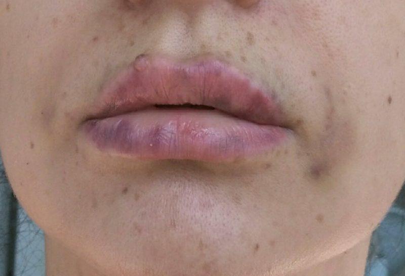 De gevolgen van een mislukte lipvergroting