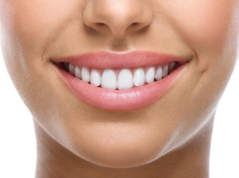Glimlach met Perfect Smile-fineer