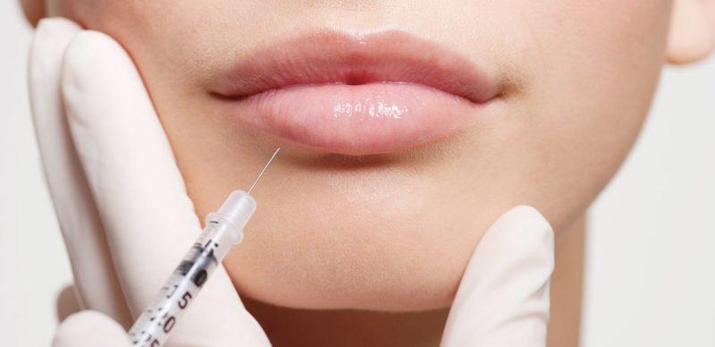 Injection d'acide hyaluronique dans les lèvres