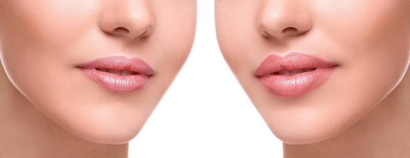 Lippen vergrote vulstoffen (voor en na)