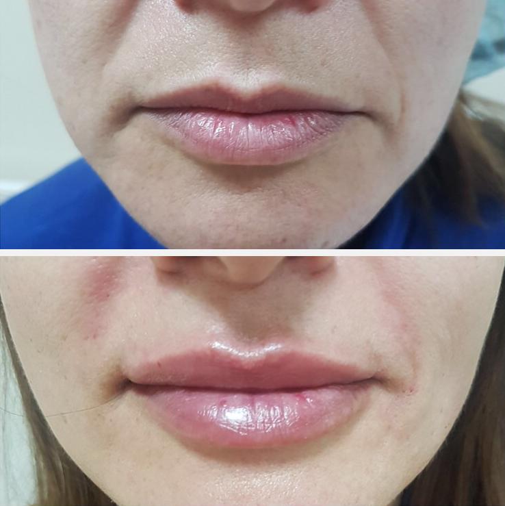 Lipvergroting met hyaluronzuur