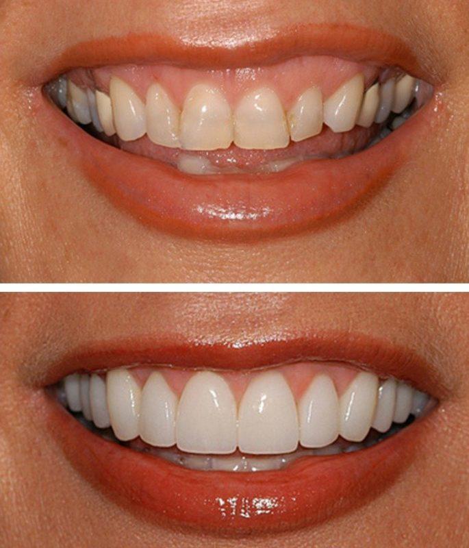 Perfect Smile Veneers Veneers: Before and After
