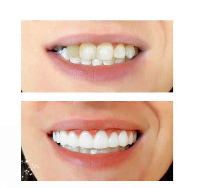 Perfect Smile Veneers: Before and After