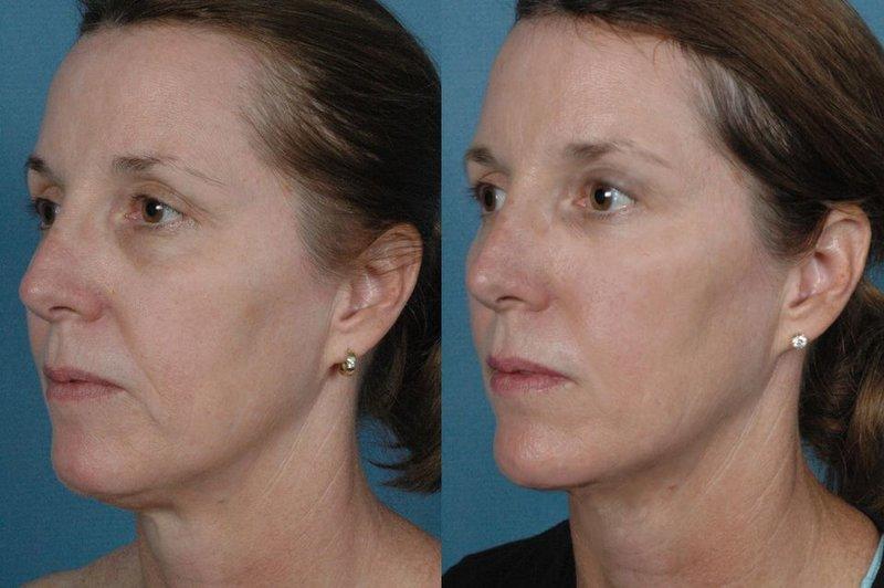 Correctie van de kin en nasolabiale plooien met RF-tilprocedures 4