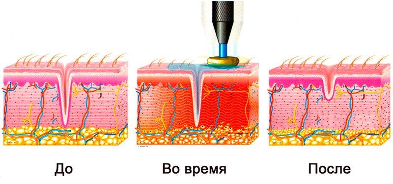 Het mechanisme van blootstelling aan RF-tillen