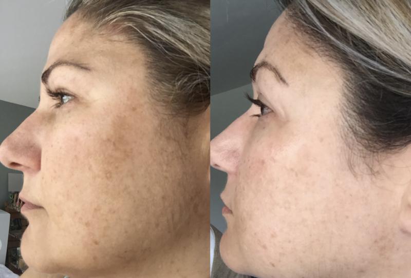 Peeling-effect prx-t33: foto voor en na vier procedures