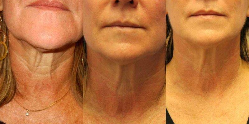Correctie van de nek met RF-tilprocedures 4