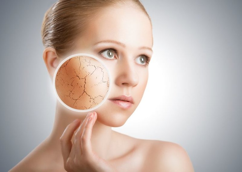 Droge huid bij vrouwen na 30 jaar