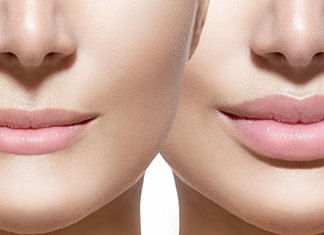 Augmentation des lèvres: que se passera-t-il après la procédure?