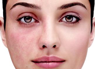 Comment choisir une crème pour les rougeurs sur le visage?