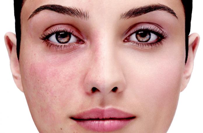 Hoe kies je een crème voor roodheid op het gezicht?