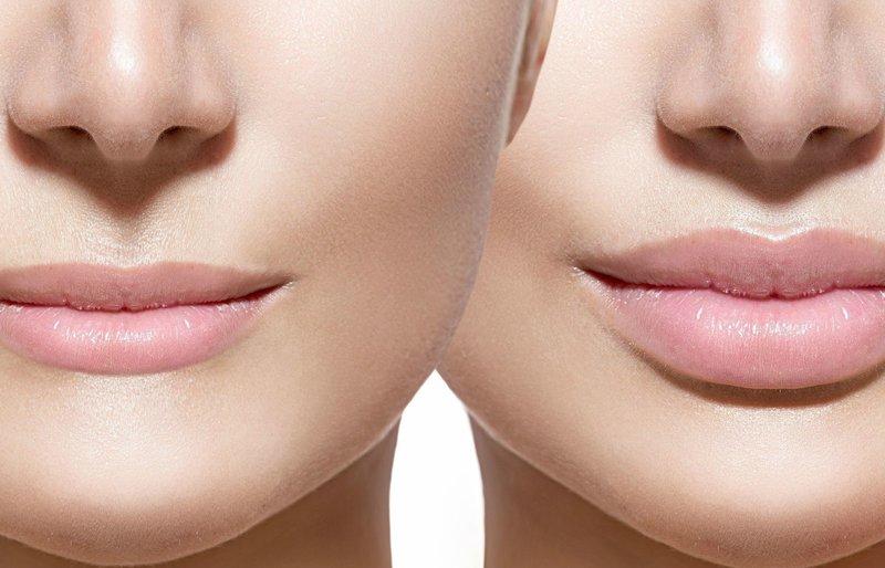 Lūpos prieš ir po padidinimo hialurono rūgštimi