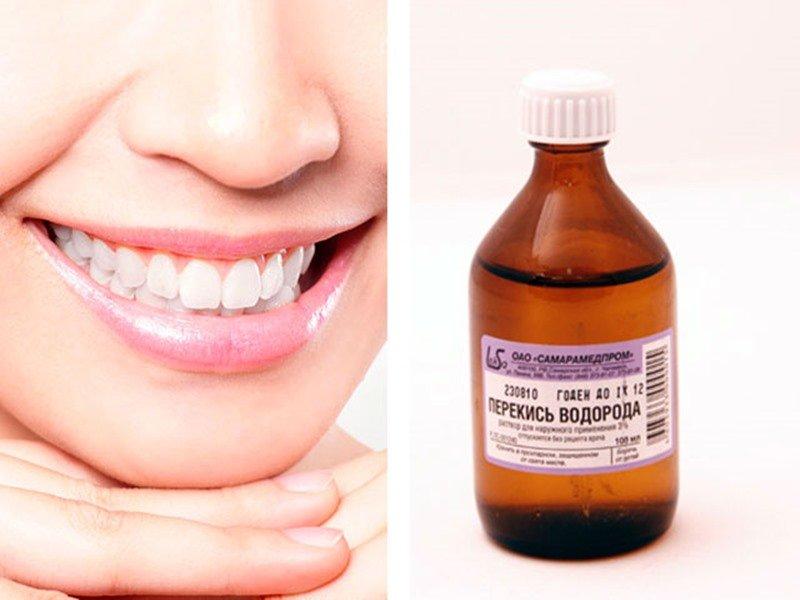 Peroksido dantų balinimas