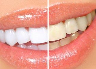 Blanchiment des dents à la maison