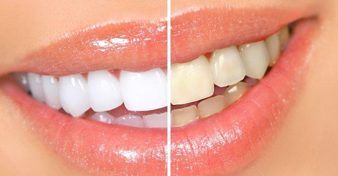 Dantų balinimas namuose