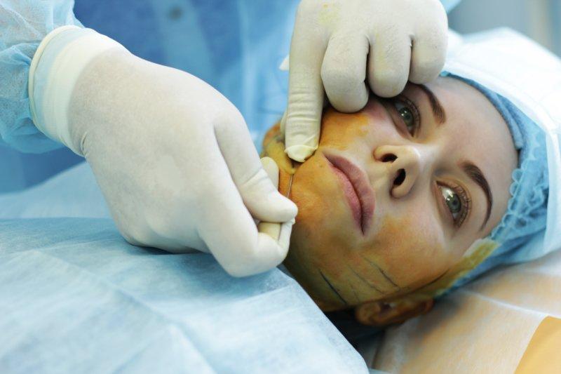 Galimos veido pakėlimo komplikacijos ir pasekmės naudojant mezotinius siūlus