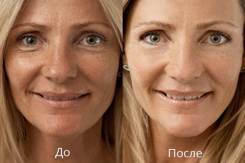 Foto's voor en na biorevitalisatie