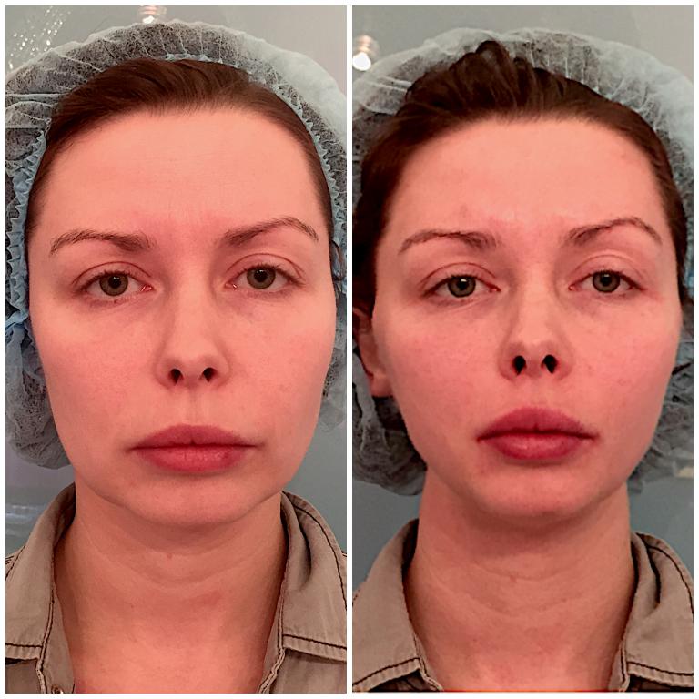 Siūlo pakėlimas: prieš ir po nuotraukų
