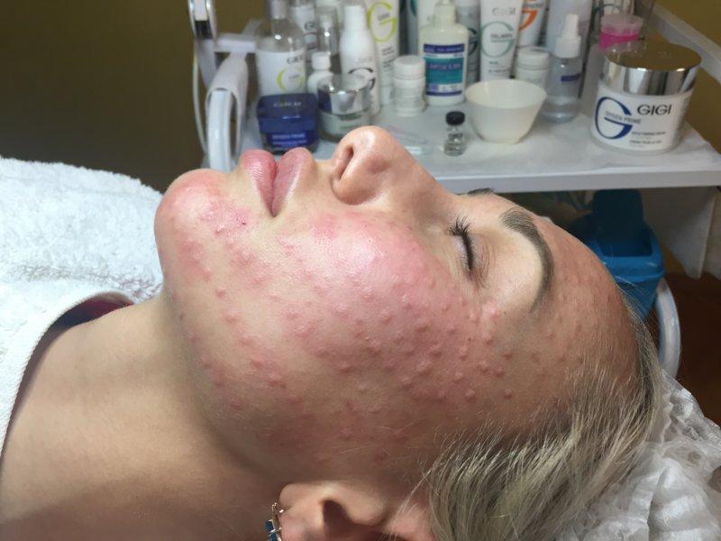 Papels op het gezicht na de procedure
