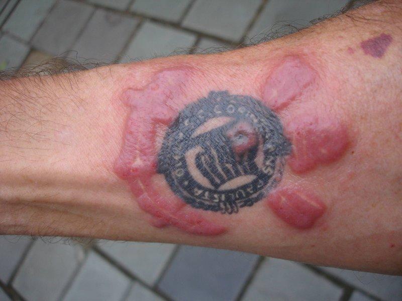 Odos uždegimas pašalinus tatuiruotę