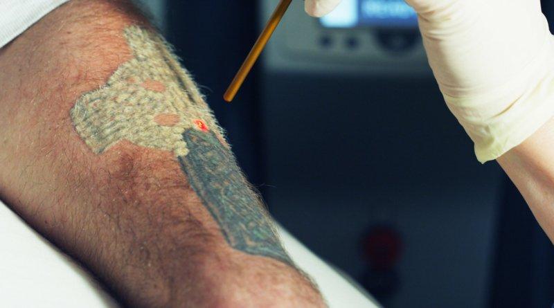 Tatuiruočių šalinimo lazeriu efektas