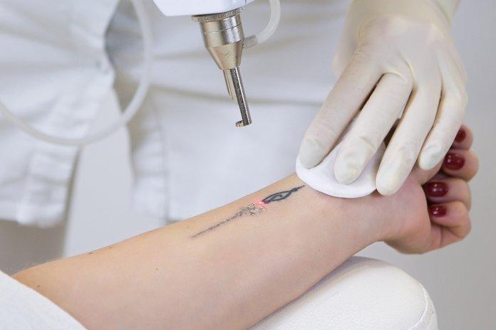Tatuiruočių pašalinimas lazeriu
